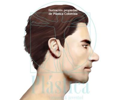 Ilustración Nariz muy ancha o con punta nasal redonda
