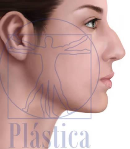 Ilustración Rinoplastia con Giba Nasal en mujer