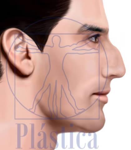 Ilustración Rinoplastia con Giba Nasal en hombre