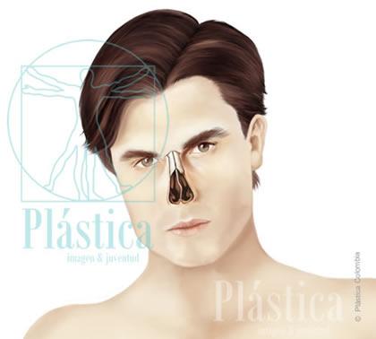 Desviaci 243 N Del Tabique Nasal Y Septorrinoplastia