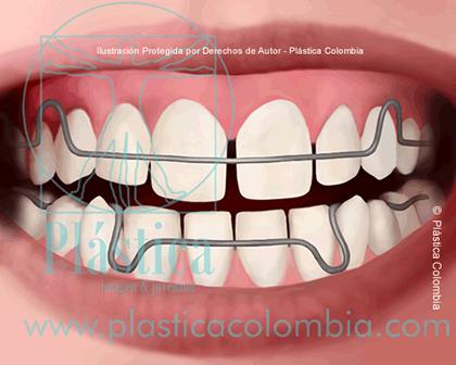 Ilustración Aparato Dental para Adultos