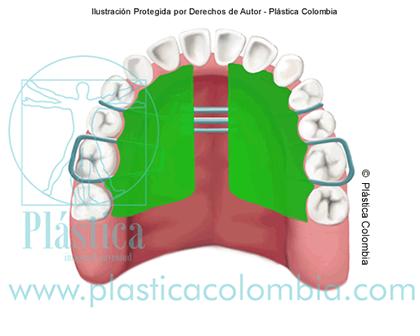 Ilustración de un apato para ortodoncia