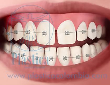 Ilustración ortodoncia autoligable