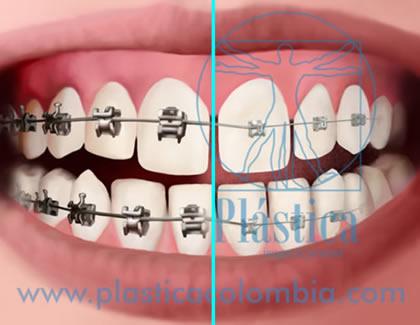 Ilustración de ortodoncia tradicional vs autoligable