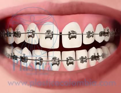 Ilustración Ortodoncia Tradicional