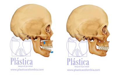 Osteotomia Lefort