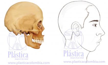 Osteotomia Sagital