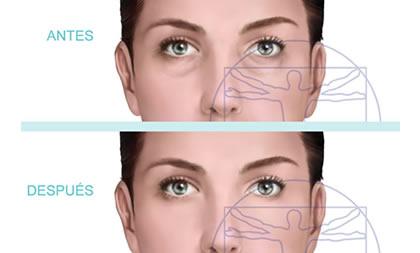 Ilustración Antes y Después - Blefaroplastia Inferior