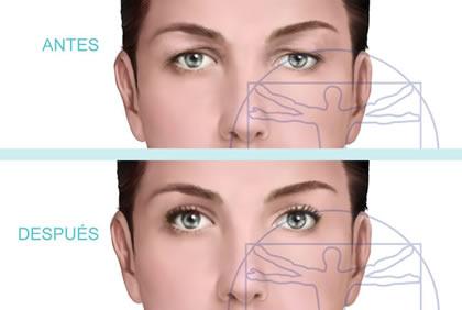 Cirugía de párpados superiores