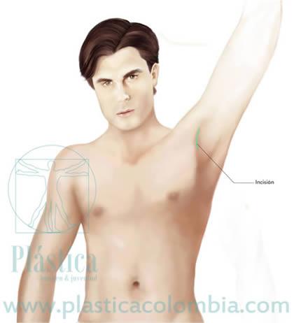 Ilustración incisión pectoral implante