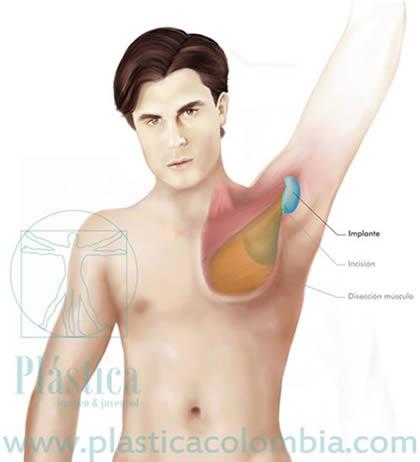 Ilustración  músculo pectoral