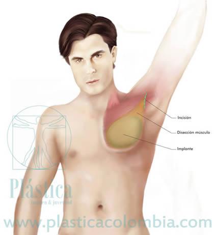 Ilustración  colocación implante pectoral