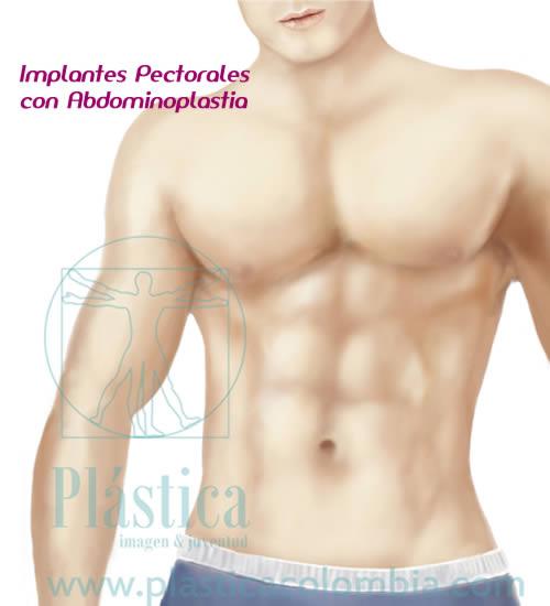Implantes pectorales con marcación abdominal