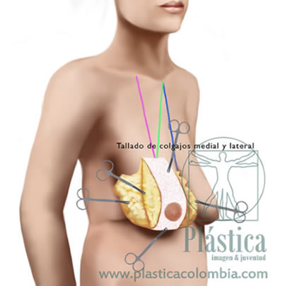 Ilustración pexia mamaria sin prótesis 3