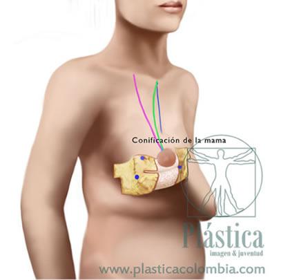 Ilustración pexia mamaria 4