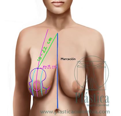 Pexia mamaria con prótesis mamarias 2