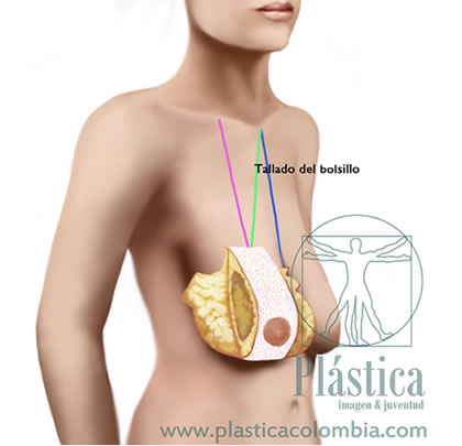 Pexia mamaria con prótesis mamarias 6