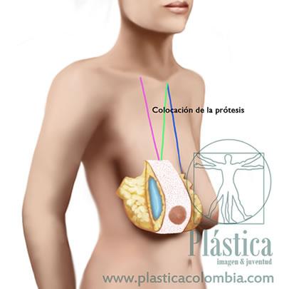 Pexia mamaria con prótesis mamarias 7