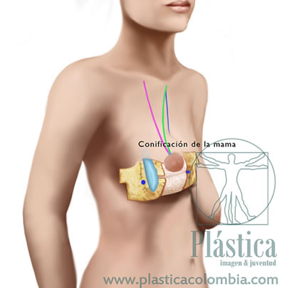 Pexia mamaria con prótesis mamarias 8