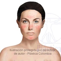 Rosácea en Mujer