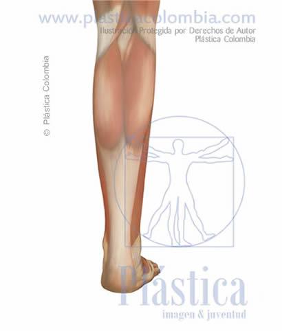 Ilustración Técnica quirúrgica Frontal pierna