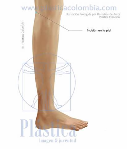 ilustración Incisión piel pierna