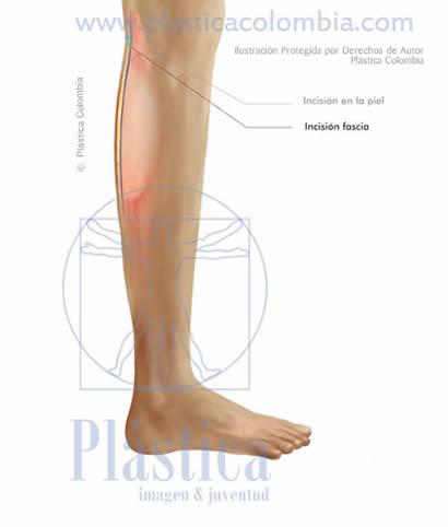 ilustración Incisión fascia pierna