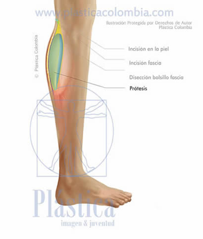 Ilustración prótesis pierna