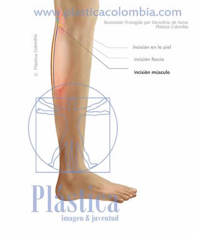 Ilustración Incisión músculo pierna