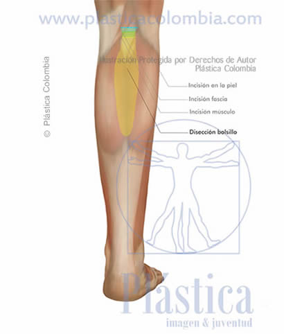 Ilustración Disección bolsillo frontal pierna