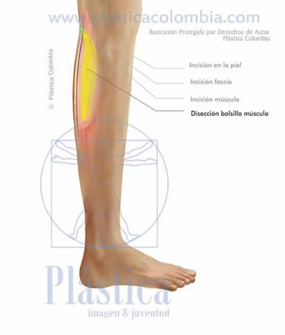 Ilustración Disección bolsillo músculo