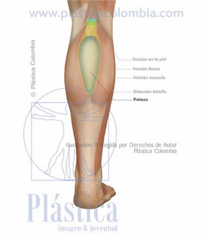 Ilustración Prótesis implante pierna frontal