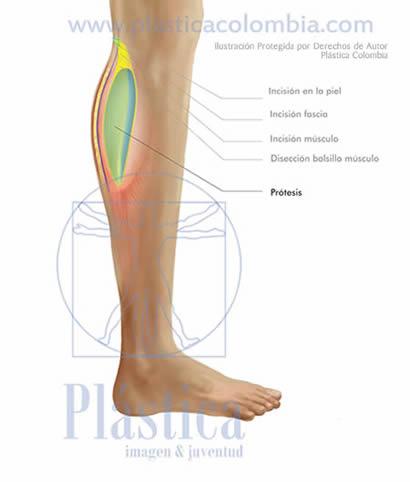 Ilustración Implante prótesis pierna