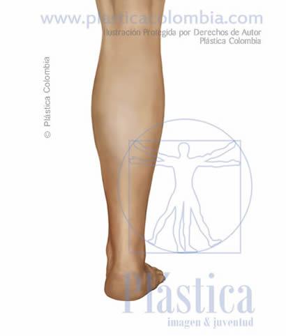 Ilustración Grosor pierna frontal