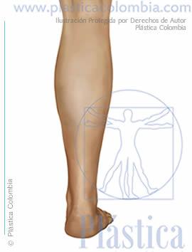 Ilustración engrosamiento pierna