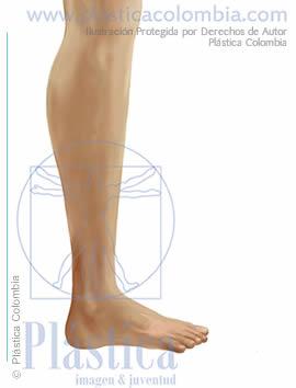 Ilustración engrosamiento pierna lateral