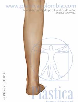 ilustración pierna delgada