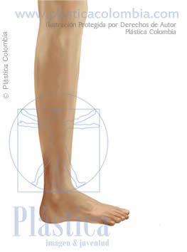 ilustración pierna delgada lateral