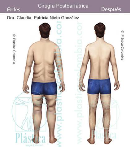 Ilustración de un hombre Antes y Después - Cirugía Postbariátrica