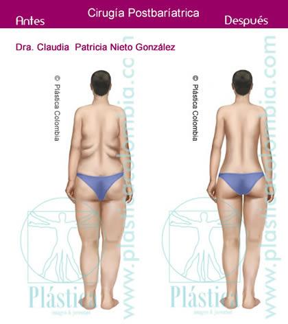 Ilustración de una mujer Antes y Después - Cirugía Postbariátrica