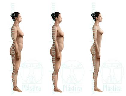 Proceso de adelgazamiento cirugía postbariátrica