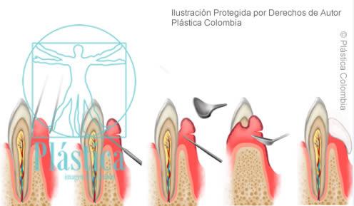 Procedimiento Gingivoplastia