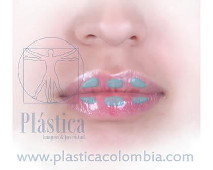 ácido hialurónico aumentar volumen labios