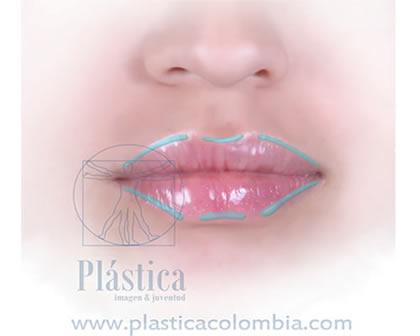 colocación de ácido hialurónico para definición del labio