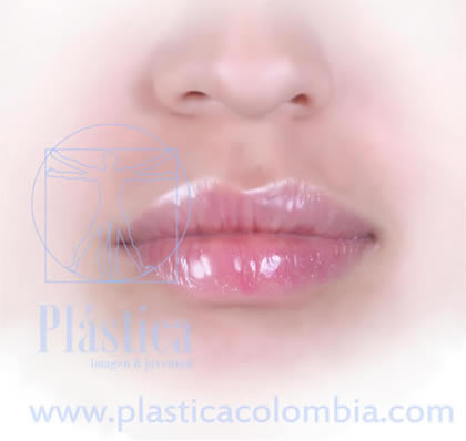 Lifting labios