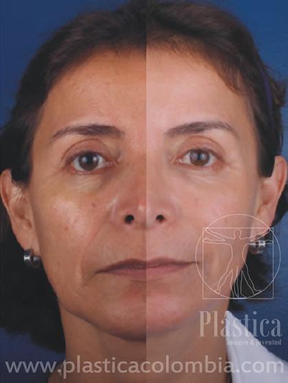 Fotografía donde se aprecia del lado izquierdo una paciente pre-tratamiento de rellenos de ácido hialurónico, aplicación de toxina botulínica y laser de CO2 fraccionado
