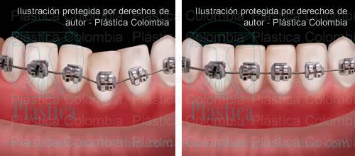 Ilustración Ortodoncia Brakets - Antes y Después