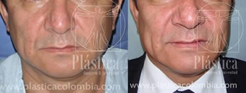 Fotografía de Antes y Después de un Tumor Maligno en la Nariz