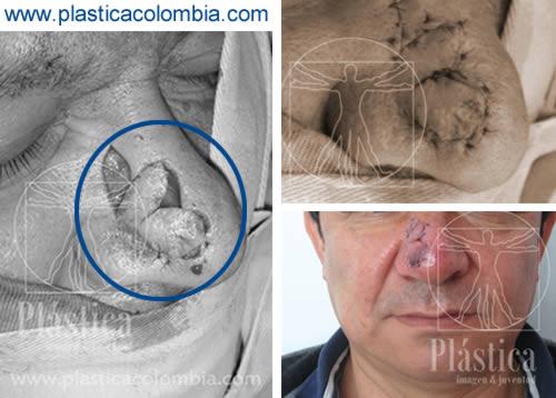 Fotografías de un Tratamiento con Colgajos en la Nariz