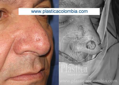 Fotografía de un Tumor Maligno en la nariz